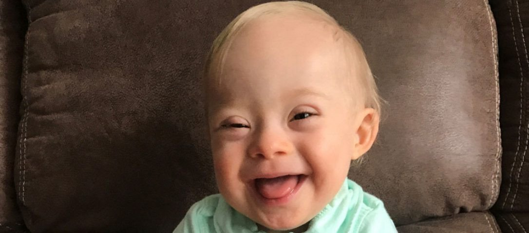 Gerber Down Syndrome 'Spokesbaby of the Year' May Help Start Changing Attitudes